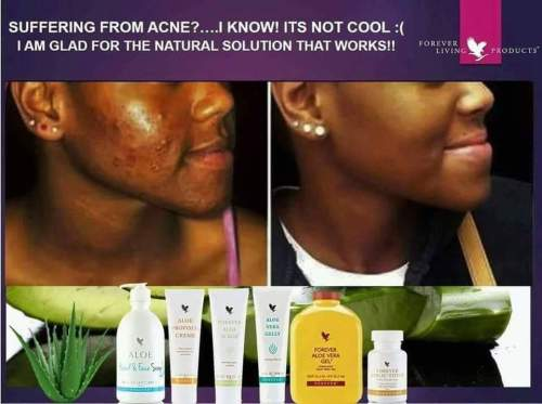 ghana-360-express-store-forever-acne-pimple-testimony