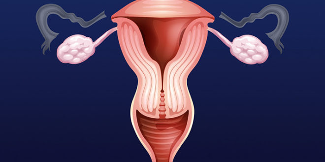 Cheap And Easy Steps To Shrink Fibroids Naturally Quick!